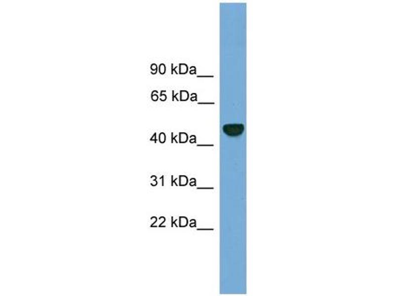 Western Blotting (WB) image for anti-Proteasome (Prosome, Macropain) 26S Subunit, Non-ATPase, 12 (PSMD12) (N-Term) antibody (ABIN2787420)