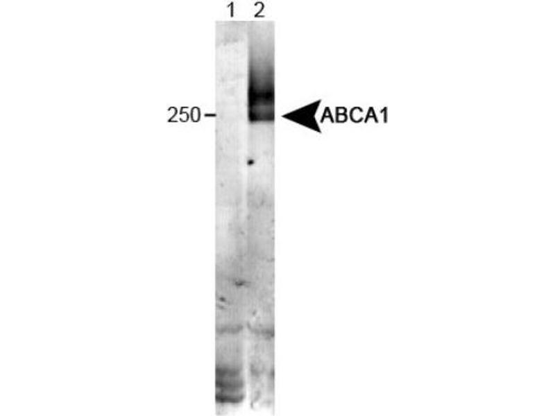 Western Blotting (WB) image for anti-ATP-Binding Cassette, Sub-Family A (ABC1), Member 1 (ABCA1) (N-Term) antibody (ABIN4277133)