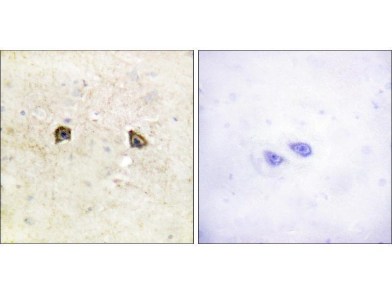 Immunohistochemistry (IHC) image for anti-EPH Receptor A2 antibody (EPHA2) (Tyr594) (ABIN2164637)