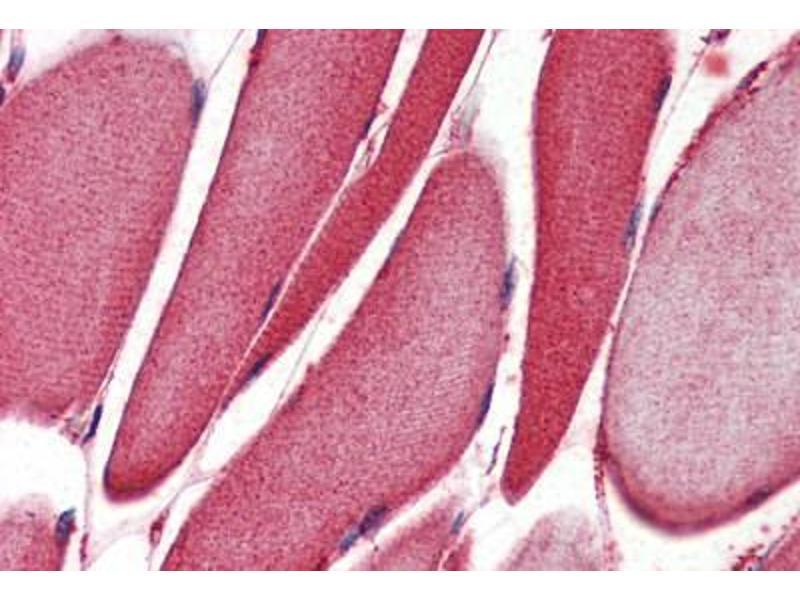 Immunohistochemistry (IHC) image for anti-Arachidonate 15-Lipoxygenase (ALOX15) (AA 482-494) antibody (ABIN962635)