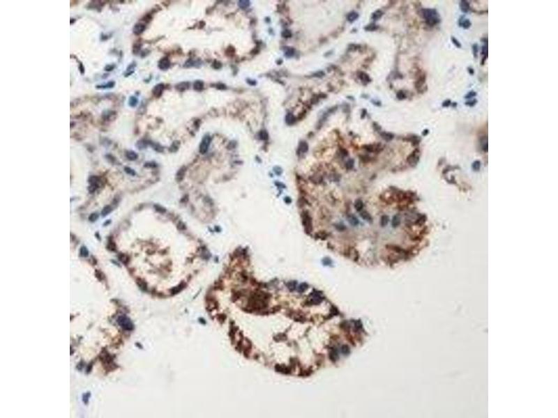 Immunohistochemistry (IHC) image for anti-Coagulation Factor XII (Hageman Factor) (F12) (Heavy Chain), (N-Term) Antikörper (ABIN2957569)