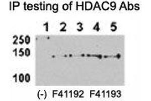 Image no. 1 for anti-Histone Deacetylase 9 (HDAC9) (AA 2-32) antibody (ABIN3031237)