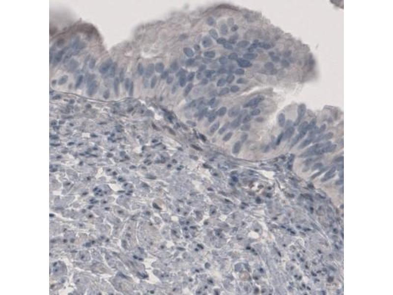 Immunohistochemistry (Paraffin-embedded Sections) (IHC (p)) image for anti-Phosphoglucomutase 1 (PGM1) antibody (ABIN5078785)