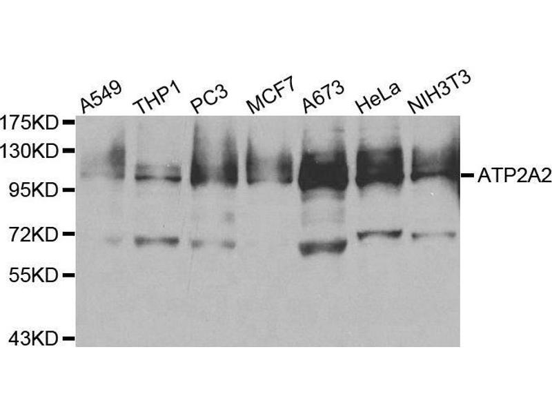 Western Blotting (WB) image for anti-ATPase, Ca++ Transporting, Cardiac Muscle, Slow Twitch 2 (ATP2A2) antibody (ABIN3021430)