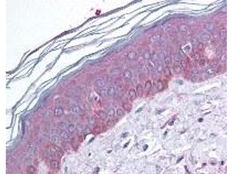 Immunohistochemistry (IHC) image for anti-Tuberous Sclerosis 2 (TSC2) (pSer664) antibody (ABIN256563)