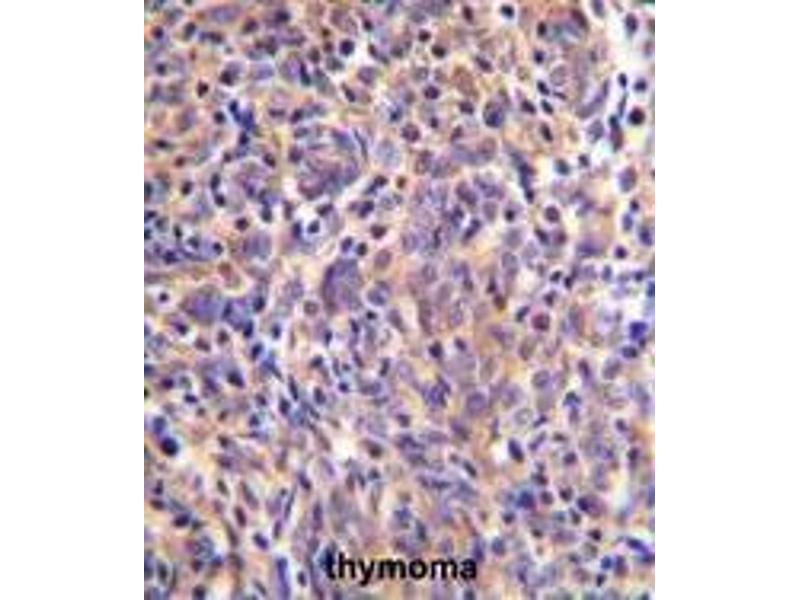 Immunohistochemistry (Paraffin-embedded Sections) (IHC (p)) image for anti-Thymocyte Selection Associated (THEMIS) (AA 566-595), (C-Term) antibody (ABIN955183)