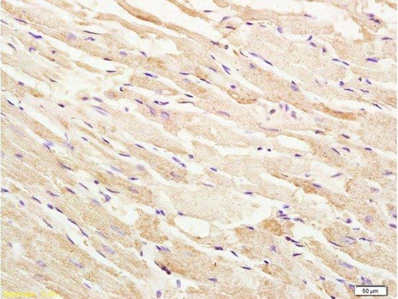 Immunohistochemistry (Paraffin-embedded Sections) (IHC (p)) image for anti-Mitogen-Activated Protein Kinase Kinase Kinase 5 (MAP3K5) (AA 825-875), (pThr845) antibody (ABIN683128)