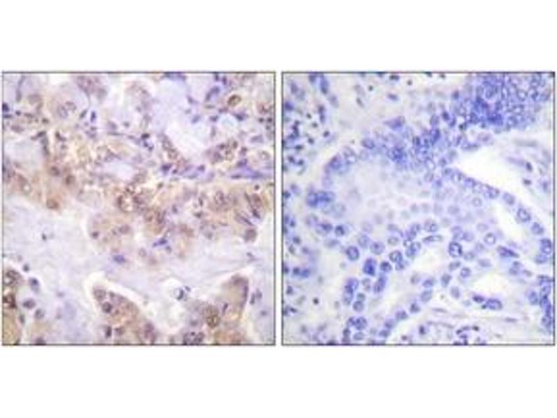 Immunohistochemistry (IHC) image for anti-RAF1 antibody (V-Raf-1 Murine Leukemia Viral Oncogene Homolog 1) (pSer621) (ABIN1531386)
