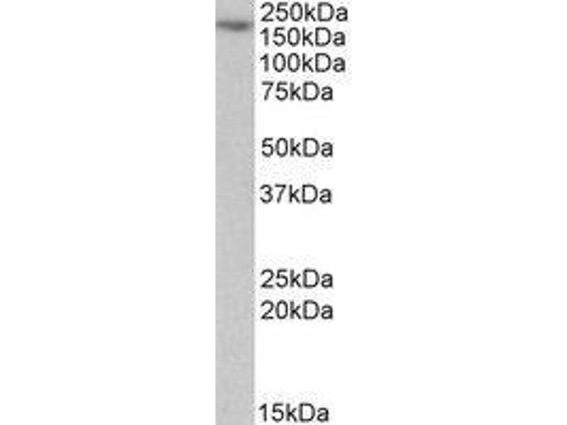 Western Blotting (WB) image for anti-MYO5A antibody (Myosin VA) (Internal Region) (ABIN499147)