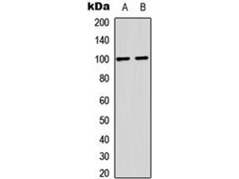 Western Blotting (WB) image for anti-Glutamate Receptor, Ionotropic, AMPA 2 (GRIA2) (C-Term), (pSer880) antibody (ABIN2704836)
