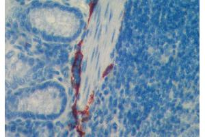 Immunohistochemistry (IHC) image for anti-Lymphatic Vessel Endothelial Hyaluronan Receptor 1 (LYVE1) (AA 24-227) antibody (ABIN115689)