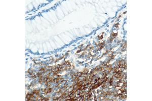 Immunohistochemistry (IHC) image for anti-Complement Component Receptor 1 (CD35) (CR1) antibody (ABIN1689163)