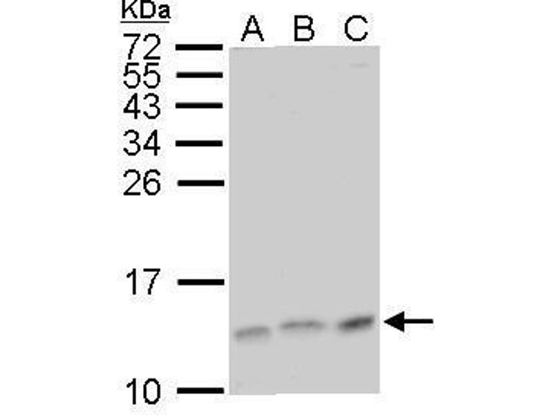 Western Blotting (WB) image for anti-MAPKSP1 antibody (Mitogen-Activated Protein Kinase Kinase 1 Interacting Protein 1) (ABIN2489507)