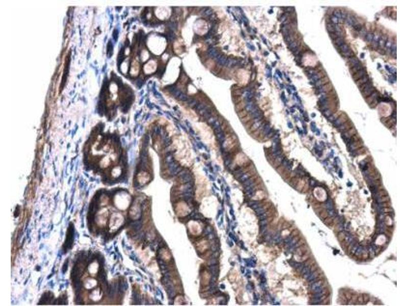 Immunohistochemistry (Paraffin-embedded Sections) (IHC (p)) image for anti-Guanine Nucleotide Binding Protein (G Protein), Q Polypeptide (GNAQ) (Center) antibody (ABIN441968)