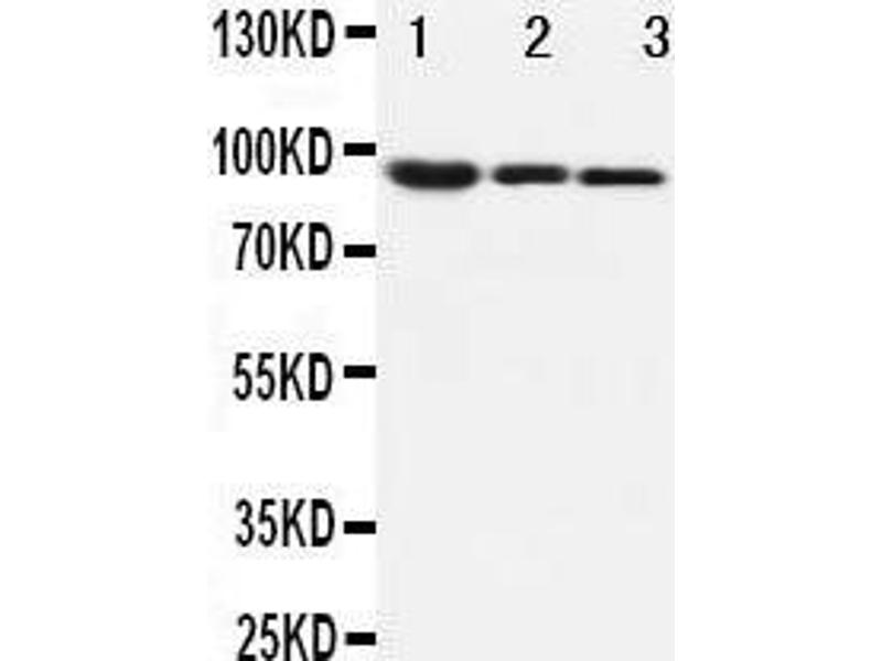 Western Blotting (WB) image for anti-CTNNB1 antibody (Catenin (Cadherin-Associated Protein), beta 1, 88kDa) (AA 764-781) (ABIN3044344)