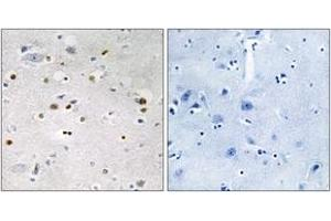 Image no. 1 for anti-Zinc Finger Protein 7 (ZNF7) (AA 41-90) antibody (ABIN1533632)