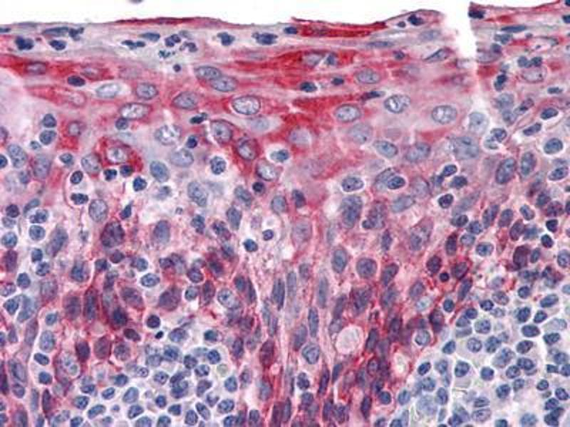 Immunohistochemistry (IHC) image for anti-Keratin 15 (KRT15) antibody (ABIN969250)