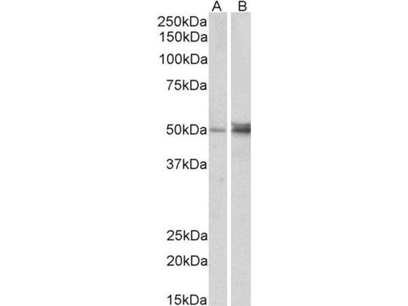 Western Blotting (WB) image for anti-Forkhead Box L2 (FOXL2) (C-Term) antibody (ABIN2562656)