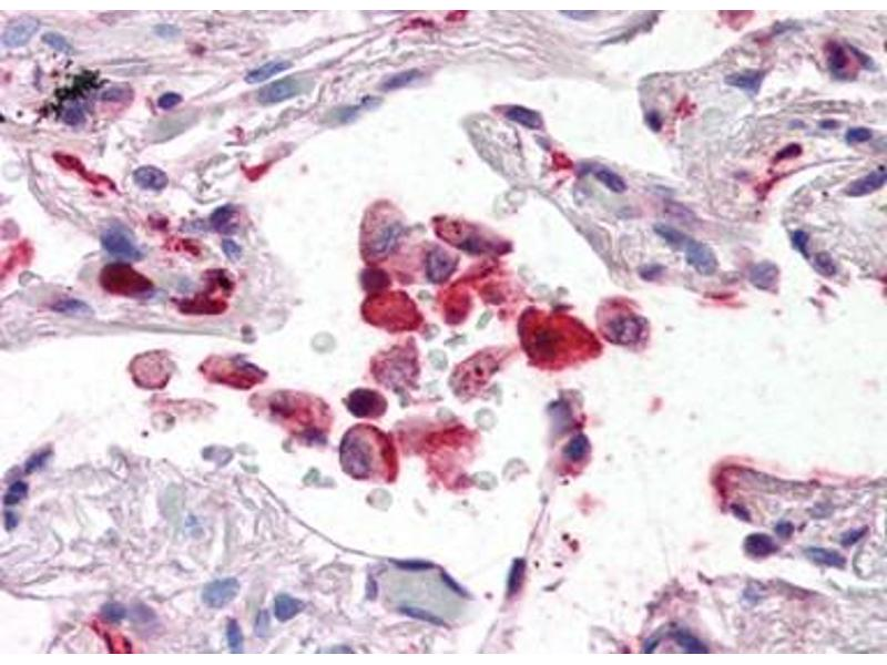 image for anti-AIF1 Antikörper (Allograft Inflammatory Factor 1) (C-Term) (ABIN492698)
