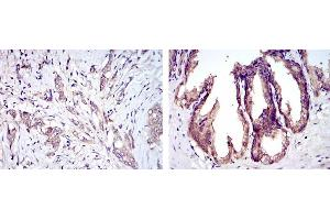 Immunohistochemistry (IHC) image for anti-MAP3K5 antibody (Mitogen-Activated Protein Kinase Kinase Kinase 5) (ABIN1108200)