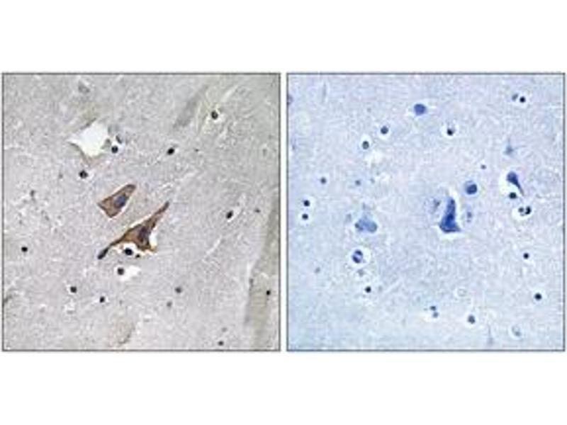 Immunohistochemistry (IHC) image for anti-TSC2 antibody (Tuberous Sclerosis 2) (pTyr1571) (ABIN1532185)