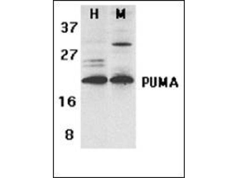 Western Blotting (WB) image for anti-BBC3 antibody (BCL2 Binding Component 3) (C-Term) (ABIN500557)