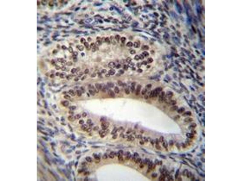 Immunohistochemistry (Paraffin-embedded Sections) (IHC (p)) image for anti-Progesterone Receptor (PGR) (AA 348-377), (Middle Region) antibody (ABIN954305)