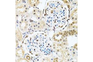 Immunohistochemistry (Paraffin-embedded Sections) (IHC (p)) image for anti-Polynucleotide Kinase 3'-Phosphatase (PNKP) antibody (ABIN6145836)