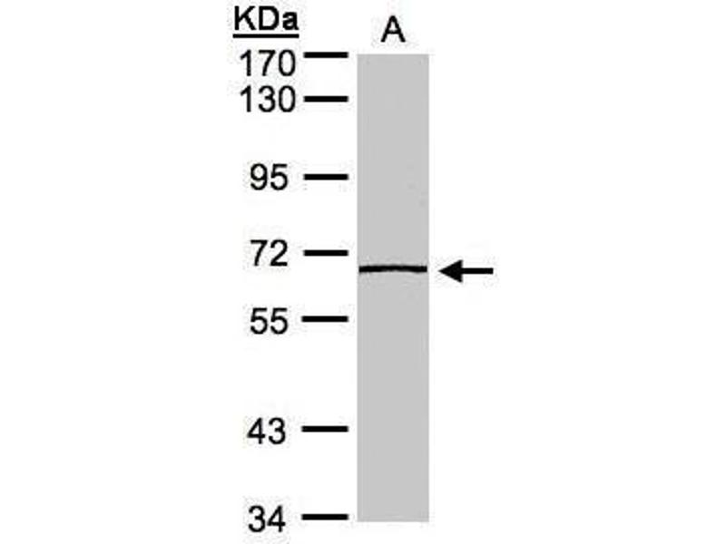 Western Blotting (WB) image for anti-Caspase 8 antibody (Caspase 8, Apoptosis-Related Cysteine Peptidase) (ABIN2157110)