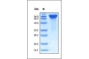 Image no. 1 for Epidermal Growth Factor Receptor (EGFR) (AA 25-645) (Active) protein (Fc Tag) (ABIN2181000)