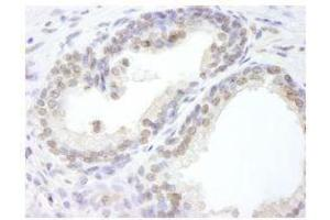Immunohistochemistry (Paraffin-embedded Sections) (IHC (p)) image for anti-Ubiquitin Specific Peptidase 47 (USP47) (C-Term) antibody (ABIN252825)