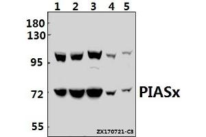 Image no. 1 for anti-Protein Inhibitor of Activated STAT, 2 (PIAS2) (AA 1-50) antibody (ABIN6712018)