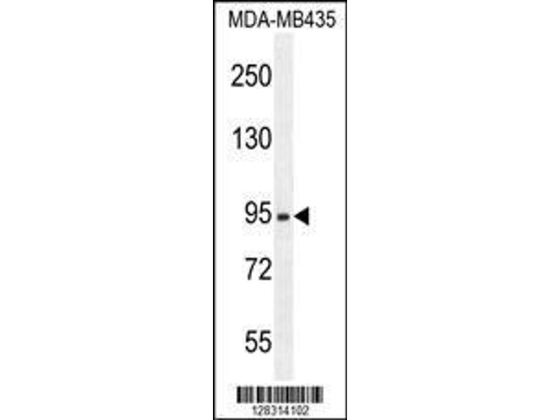 Western Blotting (WB) image for anti-Zinc Finger, B-Box Domain Containing (ZBBX) (AA 34-62), (N-Term) antibody (ABIN654386)