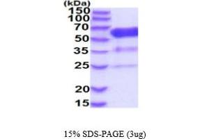 Image no. 1 for 5'-Nucleotidase, Ecto (CD73) (NT5E) (AA 29-551) (Active) protein (His tag) (ABIN5854793)