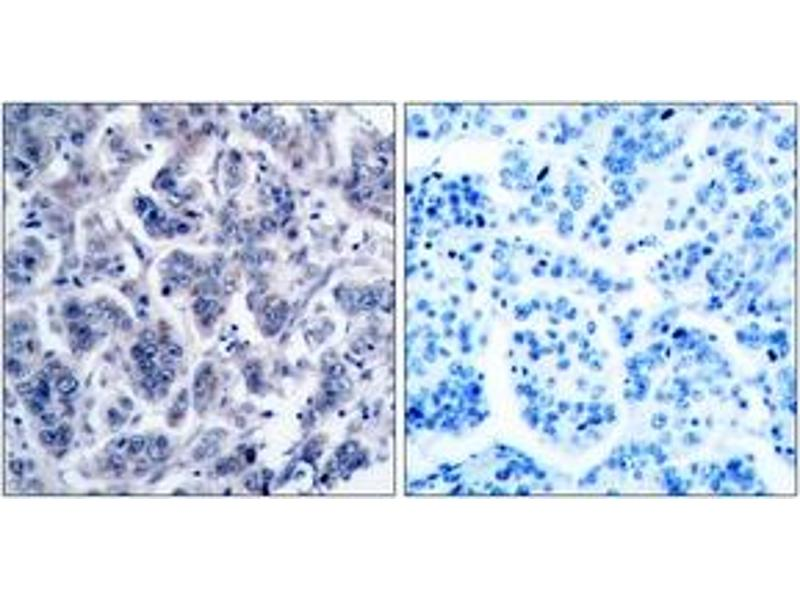 Immunohistochemistry (IHC) image for anti-TYK2 antibody (Tyrosine Kinase 2) (ABIN1533032)