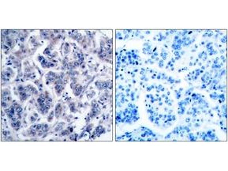 Immunohistochemistry (IHC) image for anti-Tyrosine Kinase 2 (TYK2) (AA 1020-1069) antibody (ABIN1533032)