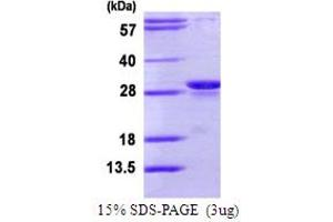 Image no. 1 for Proteasome (Prosome, Macropain) Subunit, beta Type 10 (PSMB10) (AA 40-273) protein (His tag) (ABIN6386804)