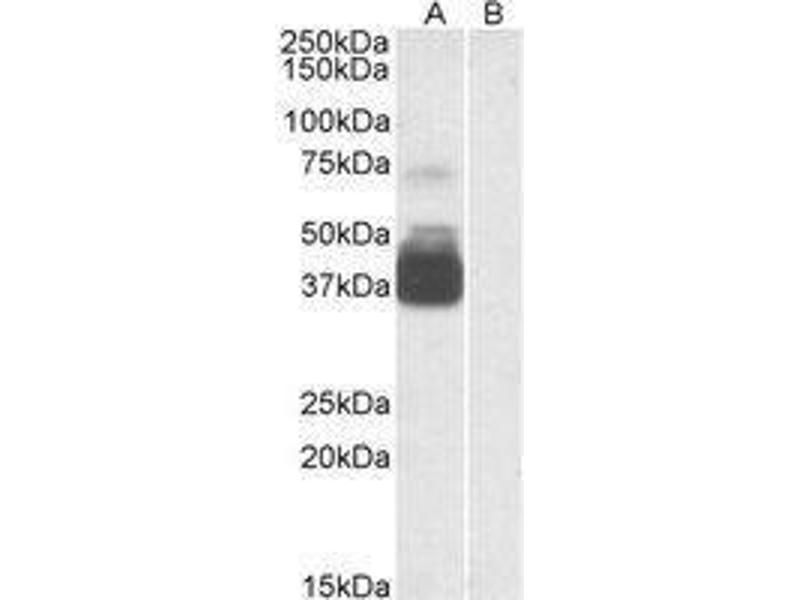 Western Blotting (WB) image for anti-Purinergic Receptor P2X, Ligand-Gated Ion Channel, 7 (P2RX7) (N-Term) antibody (ABIN451826)