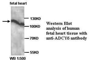 Image no. 1 for anti-Adenylate Cyclase 6 (ADCY6) antibody (ABIN6583493)