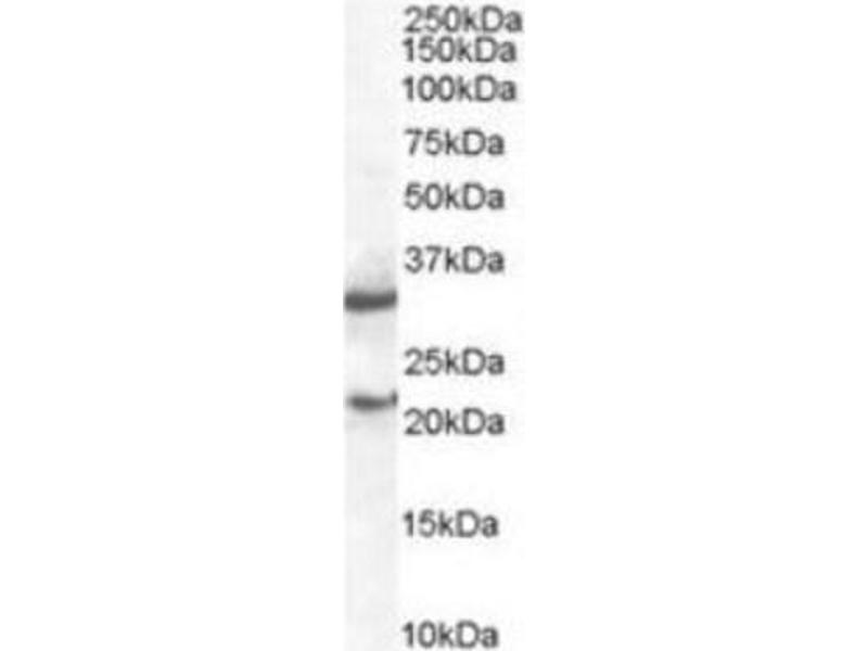 Western Blotting (WB) image for anti-SOCS1 antibody (Suppressor of Cytokine Signaling 1) (C-Term) (ABIN263007)