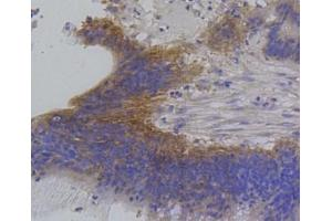 Immunohistochemistry (Paraffin-embedded Sections) (IHC (p)) image for anti-Interferon Regulatory Factor 1 (IRF1) (C-Term) antibody (ABIN5947983)