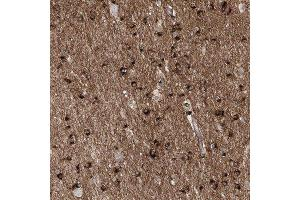Immunohistochemistry (Paraffin-embedded Sections) (IHC (p)) image for anti-Apoptotic Peptidase Activating Factor 1 (APAF1) antibody (ABIN4280962)
