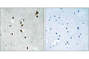 Immunohistochemistry (IHC) image for anti-MKNK1 antibody (MAP Kinase Interacting serine/threonine Kinase 1) (pThr385) (ABIN1532155)
