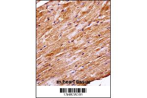 Immunohistochemistry (IHC) image for anti-MAPK4 antibody (Mitogen-Activated Protein Kinase 4) (N-Term) (ABIN2447981)