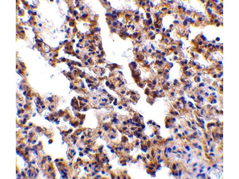Immunohistochemistry (IHC) image for anti-IL21 antibody (Interleukin 21) (Extracellular Domain) (ABIN1030836)