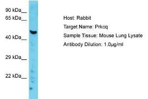 Western Blotting (WB) image for anti-Protein Kinase C, theta (PRKCQ) (C-Term) antibody (ABIN2786854)