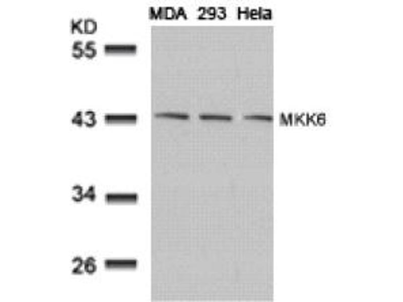 Image no. 3 for anti-MAP2K6 antibody (Mitogen-Activated Protein Kinase Kinase 6) (AA 205-209) (ABIN197354)