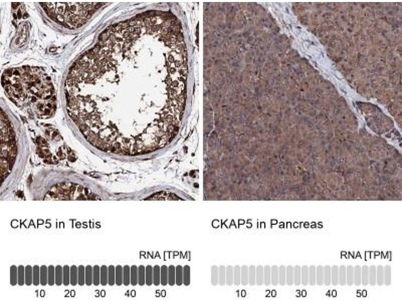 Immunohistochemistry (Paraffin-embedded Sections) (IHC (p)) image for anti-Cytoskeleton Associated Protein 5 (CKAP5) antibody (ABIN4297843)
