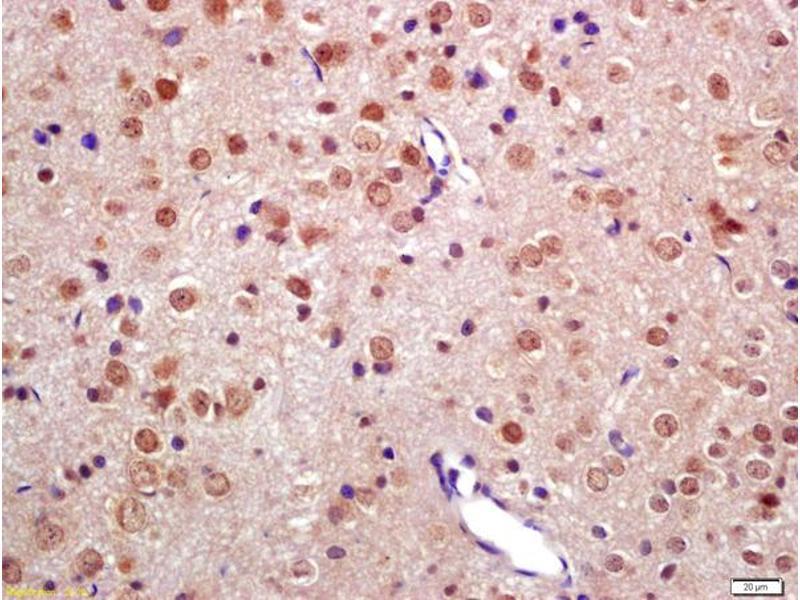Immunohistochemistry (IHC) image for anti-TNFAIP3 Interacting Protein 2 (TNIP2) antibody (ABIN872901)