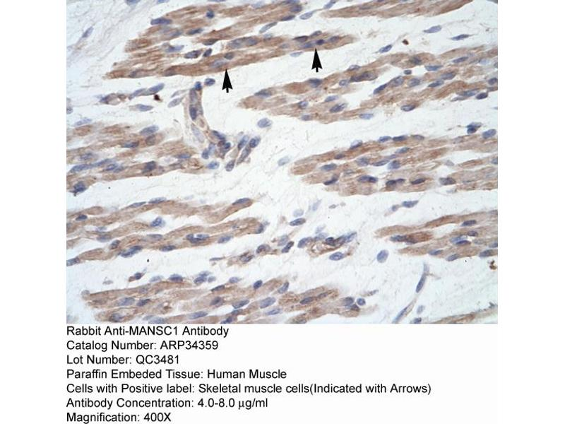 Immunohistochemistry (IHC) image for anti-MANSC Domain Containing 1 (MANSC1) (N-Term) antibody (ABIN182982)